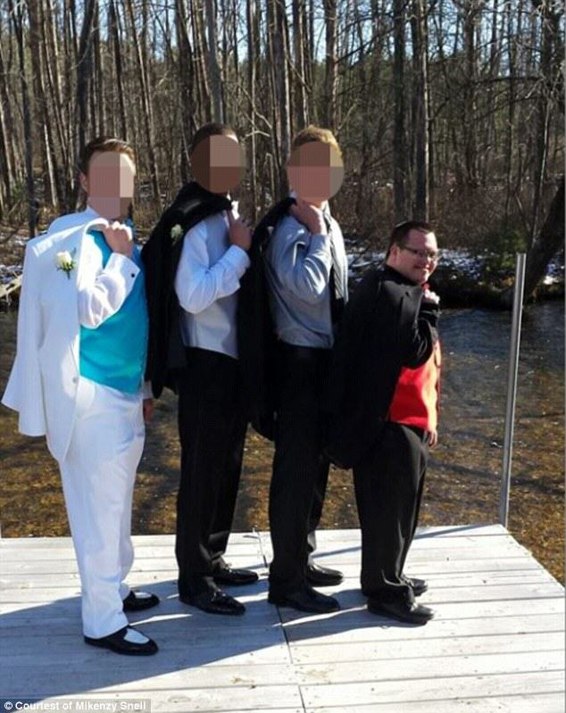 Lad With Downs Syndrome And His Prom Date Show How Its Done downs2