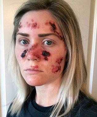 Brave Mum Shares Selfie To Show Effects Of Skin Cancer 1.1