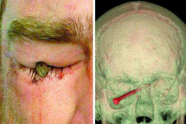 This Lad Got A 3 Inch Nail Flung Through His Eyeball 1107