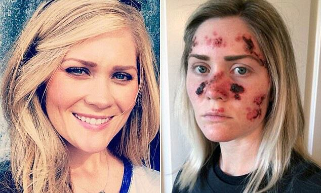 Brave Mum Shares Selfie To Show Effects Of Skin Cancer 171