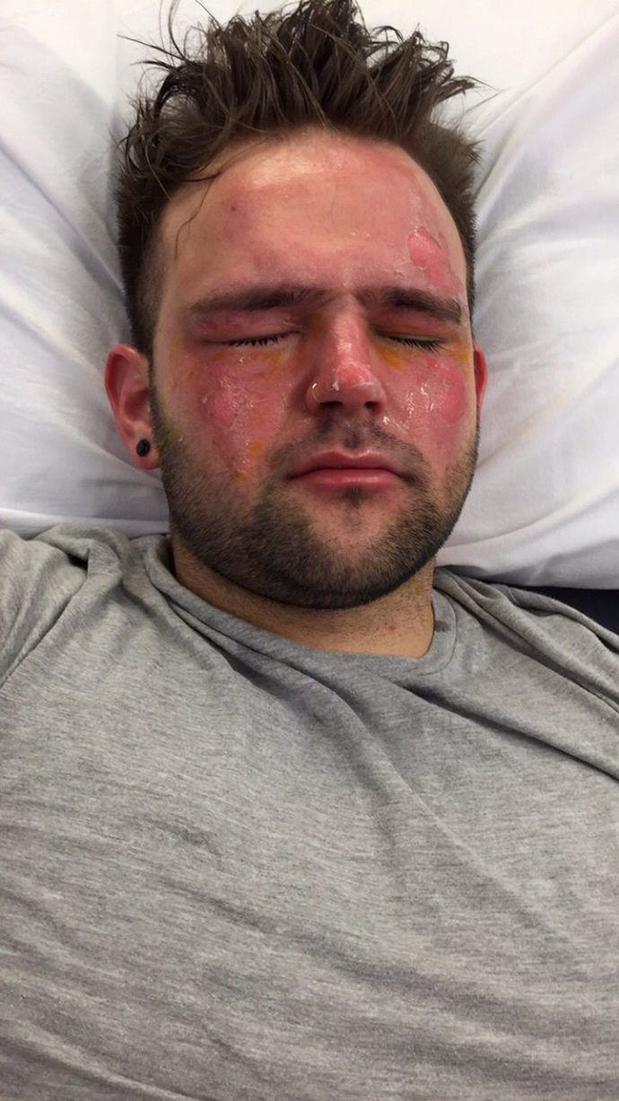 This Lad Tried To Sterilise His Protein Shake Flask But Burned His Face Instead 250