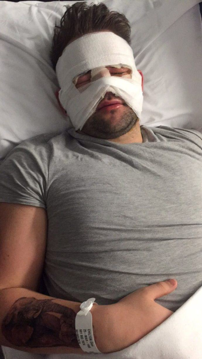 This Lad Tried To Sterilise His Protein Shake Flask But Burned His Face Instead 325