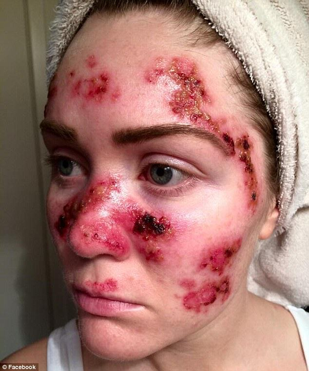 Brave Mum Shares Selfie To Show Effects Of Skin Cancer 39
