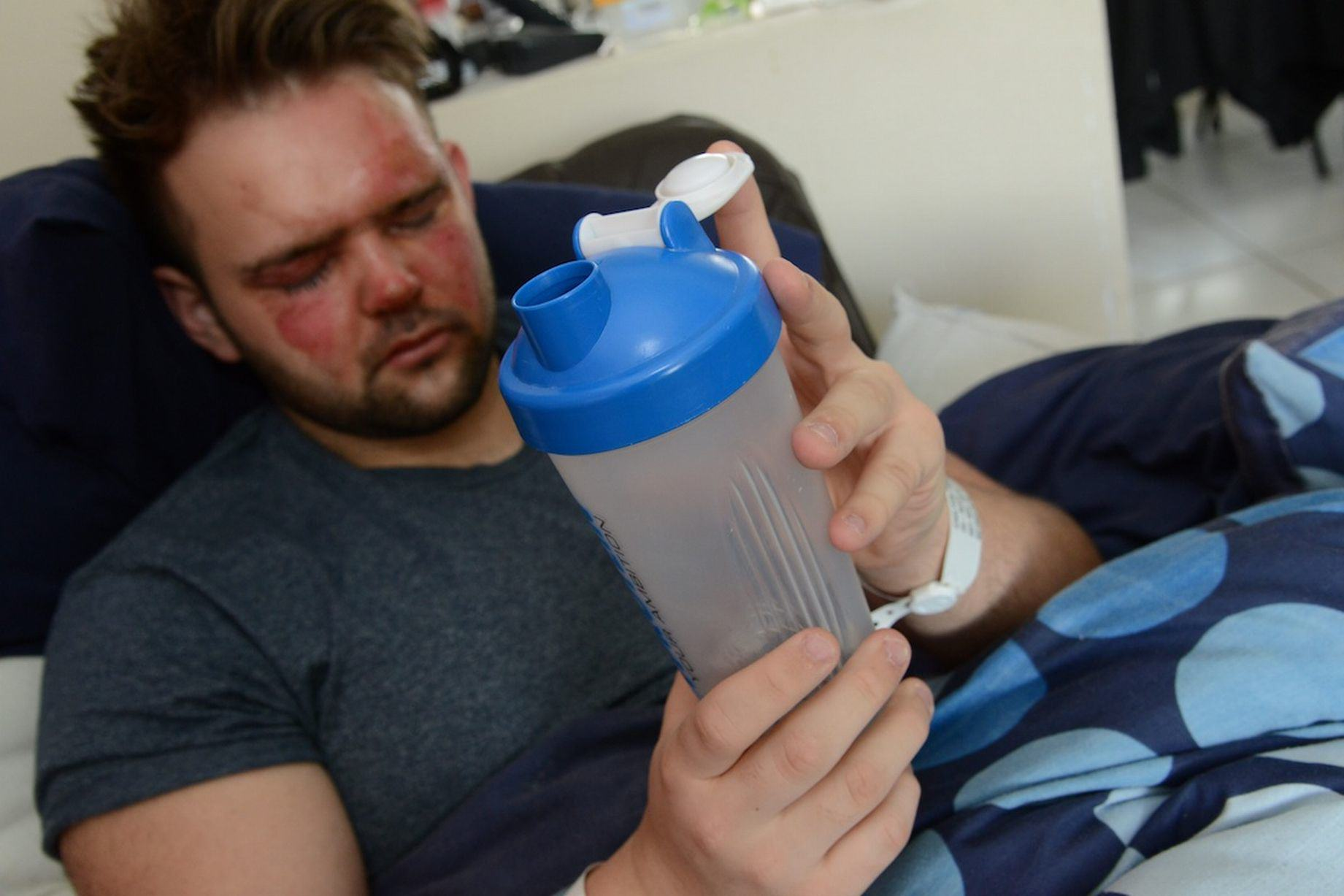 This Lad Tried To Sterilise His Protein Shake Flask But Burned His Face Instead 416
