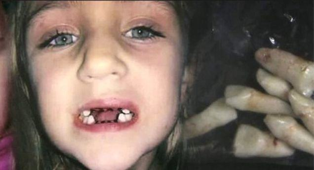 Dentist From Hell Chokes Kids, Yanks Teeth Out For No Reason dentist1