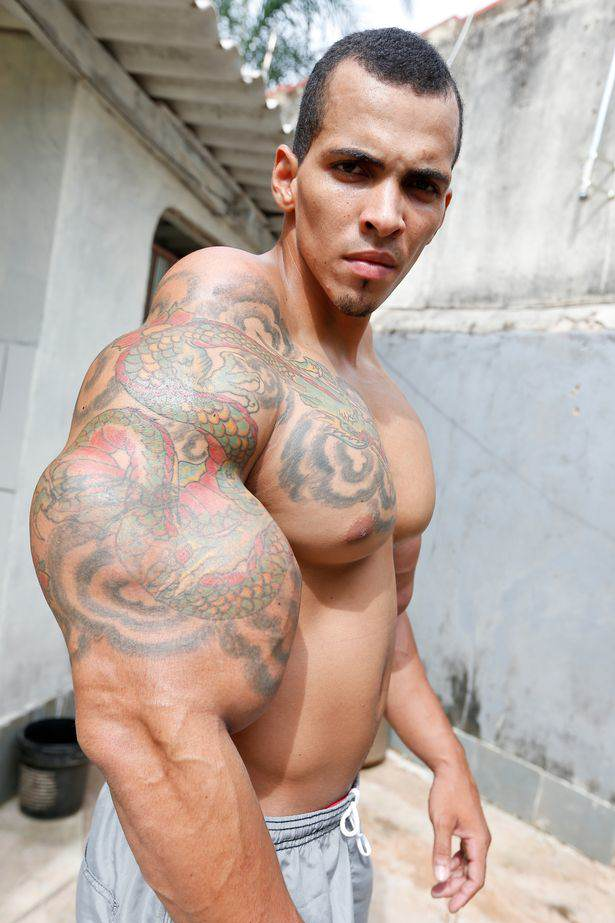 Bodybuilder Gets So Addicted To Muscle Injections He Risked Arm Amputation romario1