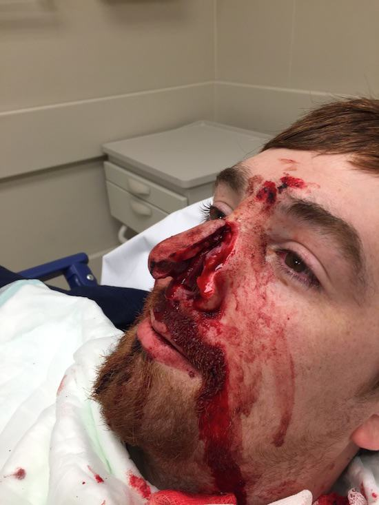 WARNING GRAPHIC: Man Slices Mates Nose Off With Samurai Sword At Party 49