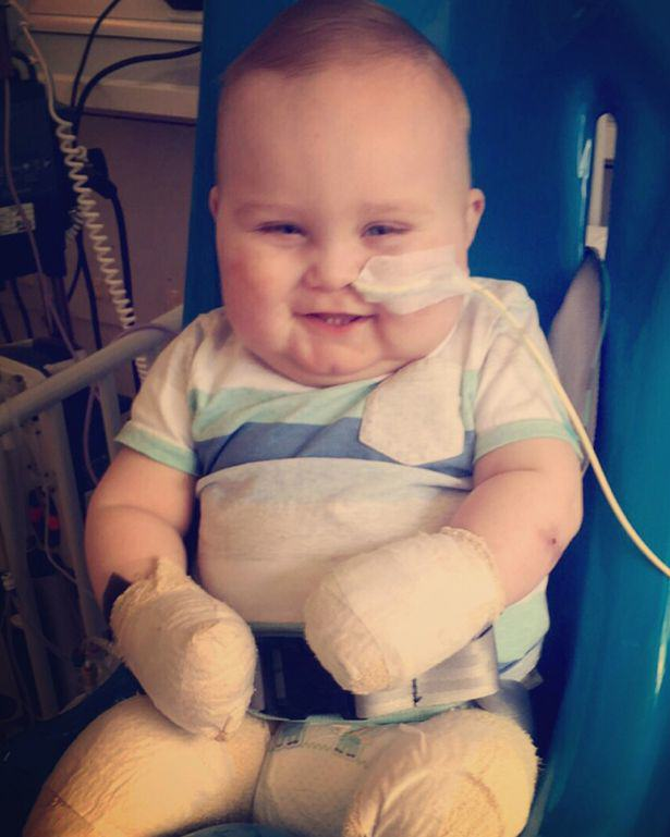 This Little Hero Has Survived Meningitis After It Claimed His Leg, Toes And Fingers 319