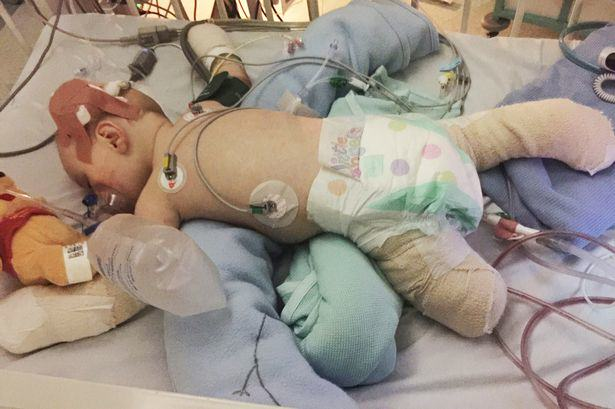 This Little Hero Has Survived Meningitis After It Claimed His Leg, Toes And Fingers 54