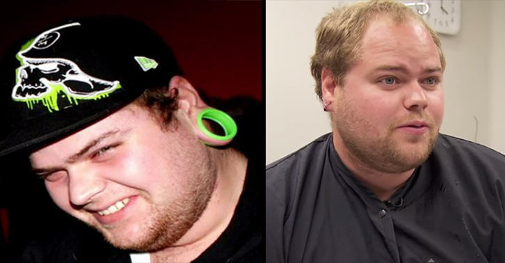 This Guy Got Surgery To Fix His Stretched Earlobes 55b8cf87530e0