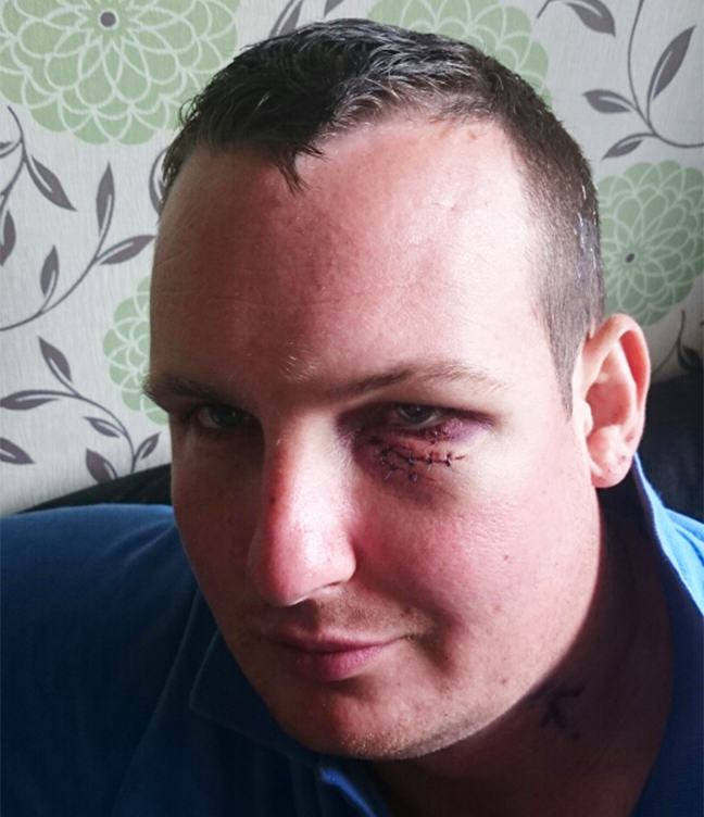 This Guy Impaled His Eye With A Two Foot Tent Peg 55b8eb81d20b5