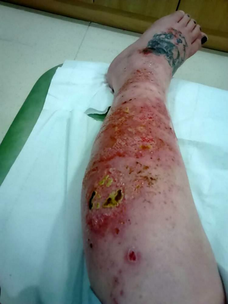 Graphic Images Of Northern Irish Woman Attacked By Spider In Bed 55ba2fe321dd2