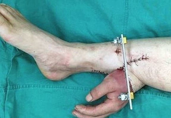 Doctors Attach Severed Hand To Leg In Order To Keep It Alive armleg web