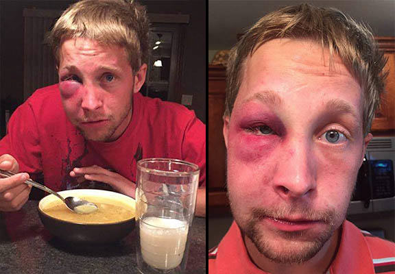 This Lad With Aspergers Syndrome Reacted Outstandingly After Being Battered aspergers WEB