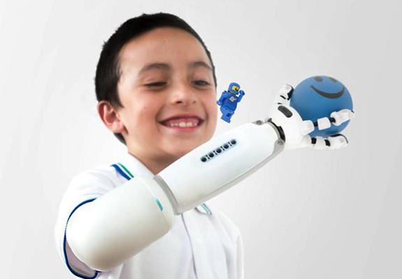 Amazing New Prosthetic Arm Is Lego Compatible So Kids Can Build Their Own Attachments lego arm WEB