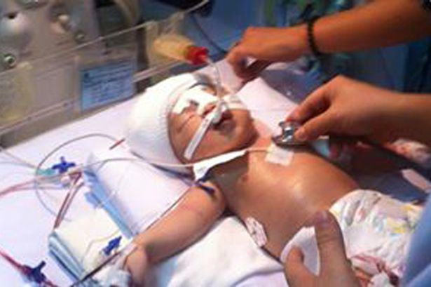 11 Day Old Baby Recovering From Pneumonia Is Stabbed In The Head With A 12 Inch Blade UNILAD 123