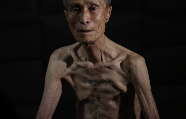 Survivor Of Nuclear Explosion Reveals His Scars 70 Years On UNILAD 2B31D3B400000578 0 image a 10 14390226147985