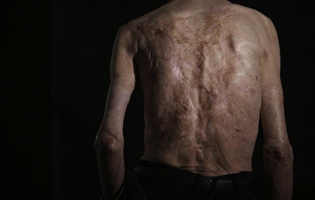 Survivor Of Nuclear Explosion Reveals His Scars 70 Years On UNILAD 2B31D4F700000578 0 image a 14 14390226448102