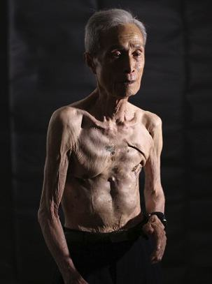 Survivor Of Nuclear Explosion Reveals His Scars 70 Years On UNILAD 2B31D55700000578 0 image m 7 14390225731105