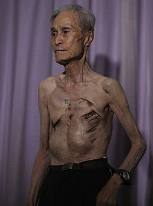 Survivor Of Nuclear Explosion Reveals His Scars 70 Years On UNILAD 2B31D55B00000578 0 image m 8 14390225888212