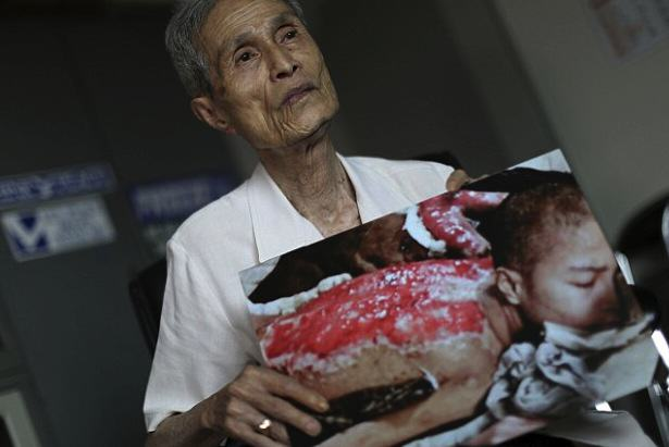Survivor Of Nuclear Explosion Reveals His Scars 70 Years On UNILAD 2B31D6CF00000578 0 image a 1 14390225314706