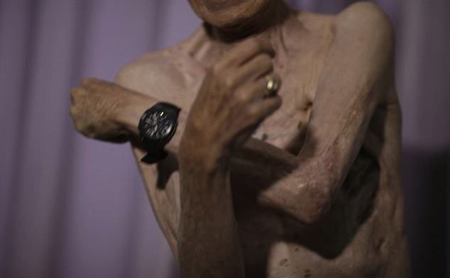 Survivor Of Nuclear Explosion Reveals His Scars 70 Years On UNILAD 2B31D6F000000578 0 image a 12 14390226302474