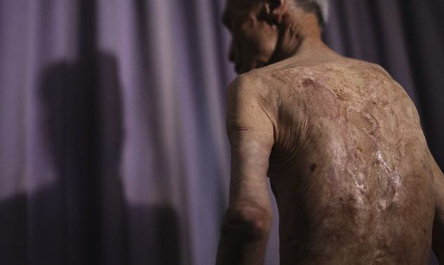 Survivor Of Nuclear Explosion Reveals His Scars 70 Years On UNILAD 2B31E20100000578 0 image a 2 14390225390738