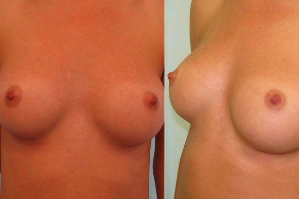 Science Has Discovered What The Perfect Pair Of Boobs Look Like, Apparently UNILAD Perfect Boobs4