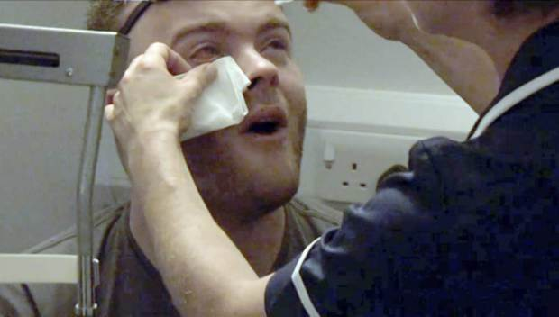 Man Leaves His Contact Lenses In Overnight, Gets Ulcer On His Eye UNILAD blister37