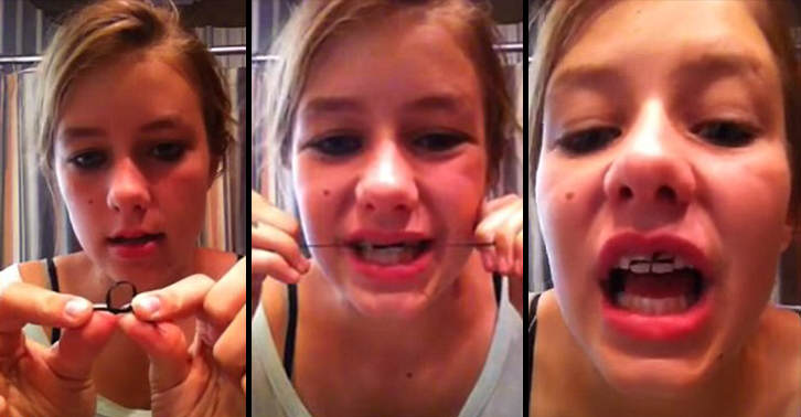 Teenagers are making dangerous diy braces using elastic bands solutioingenieria Image collections