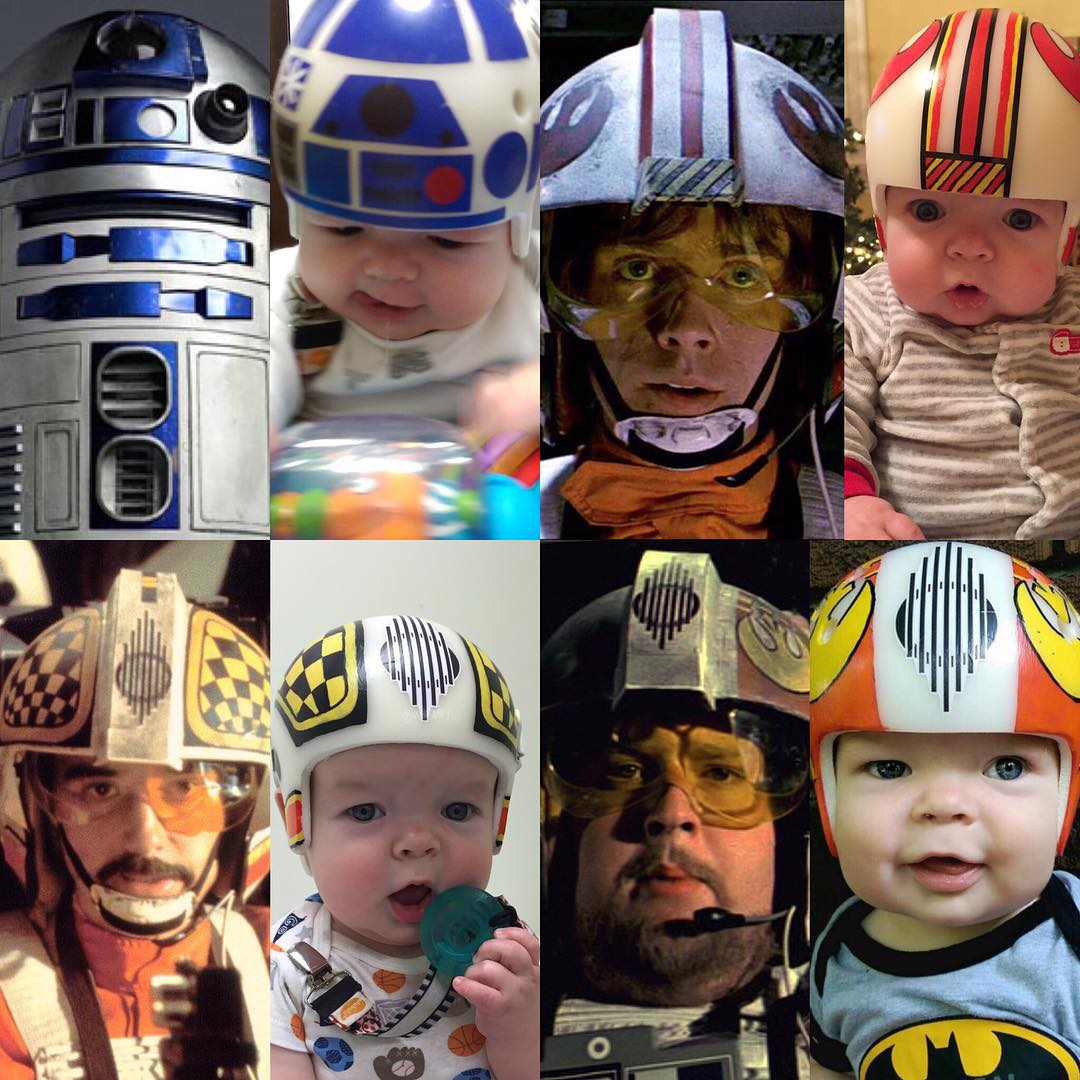 Dad Recreates Iconic Star Wars Helmets For Son After Cranial Surgery UNILAD fywW5Yb2
