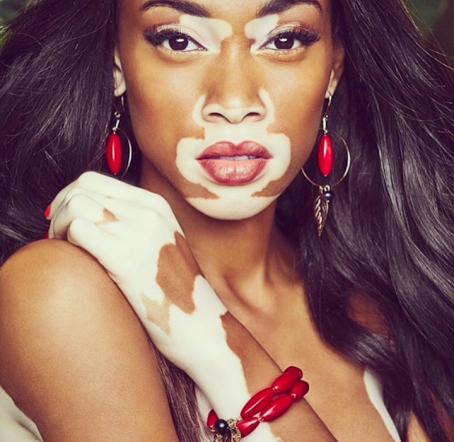 White Women Have Been Mimicking Black Models Skin Condition Via Instagram UNILAD wh3