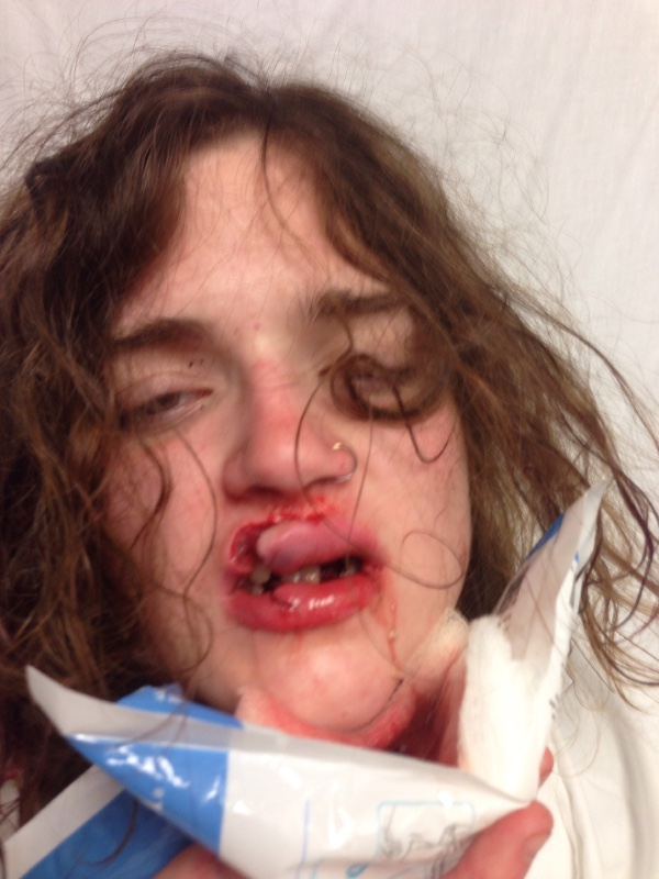 Graphic Image Of Teen Surfaces After Being Attacked By Catcallers VsXnT0x1Ojess byrnes 2.jpg