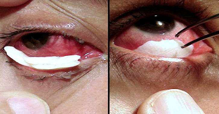 This Woman Cries Crystal Tears Due To Mysterious Condition zChZDVal8