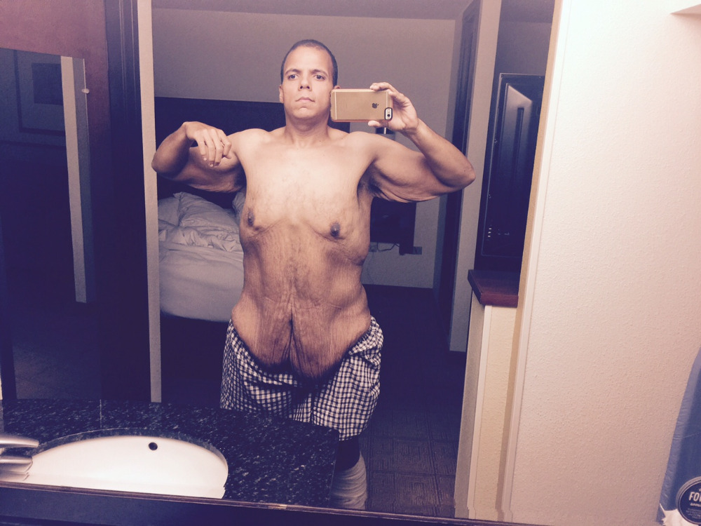 50 Stone Man Trolled Bodybuilders, Ended Up Losing Half His Bodyweight 5249590 1437686021.6959 updates
