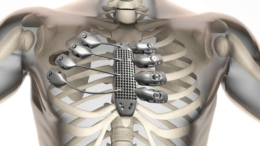 This Cancer Patients 3D Printed Metal Rib Cage Will Outlast Us All UNILAD 3d printed sternum ribs@2x4