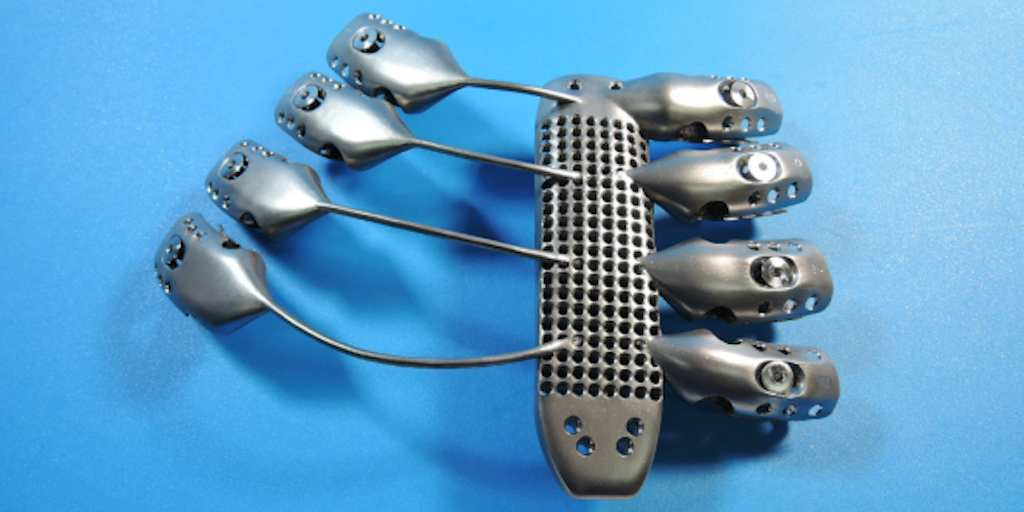 This Cancer Patients 3D Printed Metal Rib Cage Will Outlast Us All UNILAD cancer7