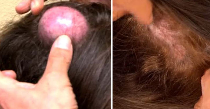 NOPE: Woman Gets Giant Cyst On Her Head Popped On Live TV UNILAD cyst WEB 27