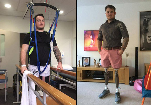 Double Amputee Soldier Told He Wouldnt Receive Further Treatment On The NHS UNILAD jay baldwin WEB5