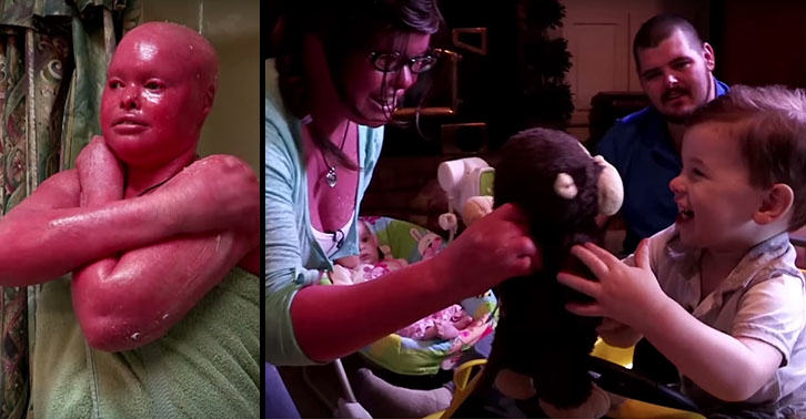 Woman With Rare Skin Disease Is First With Condition To Become Mum UNILAD mother45