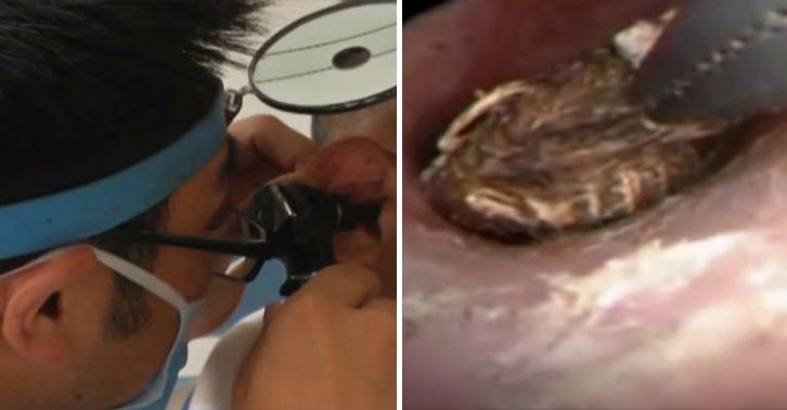 NOPE: Horrifying Moment Woman Has Centipede Removed From Her Ear centipede ear FB