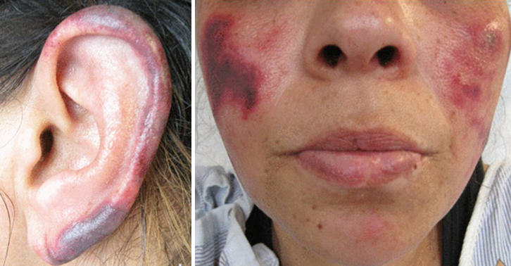 Cocaine That Rotted Womans Flesh Being Sold In U.S. And UK cocaine rot WEB 2