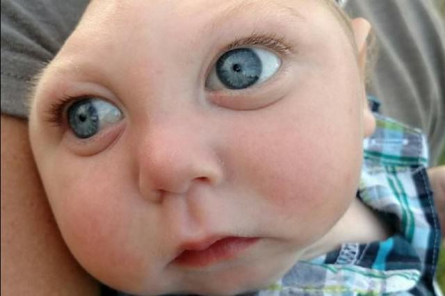 Baby Born With Most Of His Skull Missing Celebrates His First Birthday skull feature 640x426