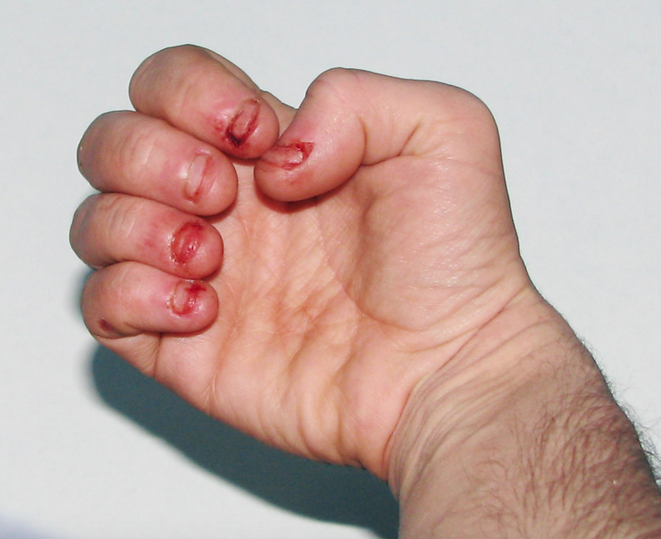 how to stop chewing finger nails
