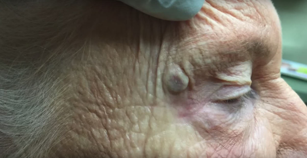 Video Of DoctorPimplePopper Popping A Massive, Disgusting Old Blackhead UNILAD Untitled 15