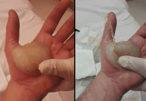 Man Popping Massive Blister Which Covers His Entire Hand Is All Kinds Of NOPE UNILAD blister pop WEB31684