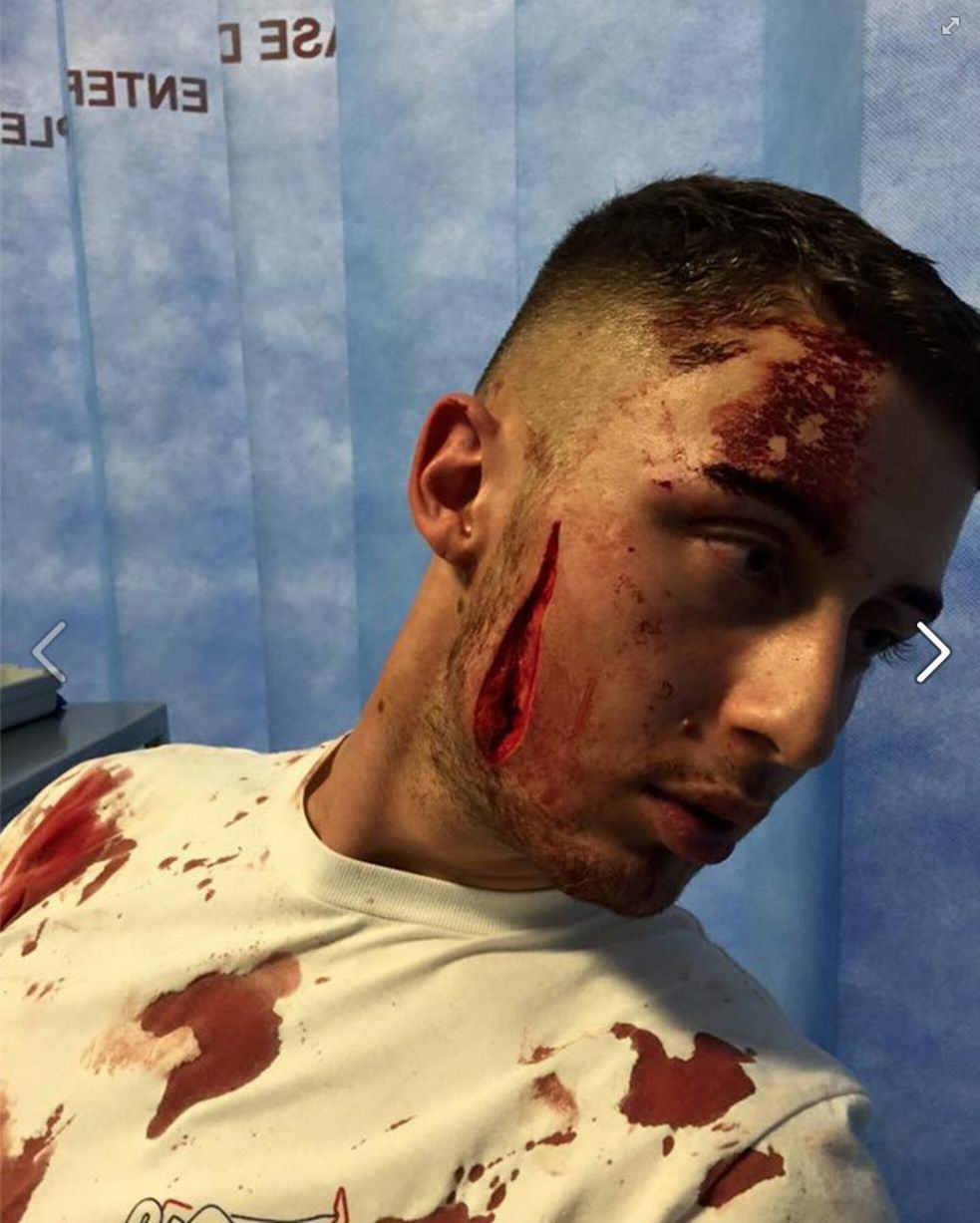 Young Clubber Suffers Horrific Facial Wound After Being Bottled UNILAD bottle injury92294