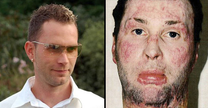 Severe Burns Victim Who Tried To Save Uncle From Setting Himself On Fire Wins Massive Compensation UNILAD burns victim 28