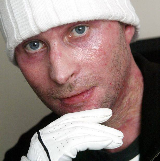 Severe Burns Victim Who Tried To Save Uncle From Setting Himself On Fire Wins Massive Compensation UNILAD burns victim 43