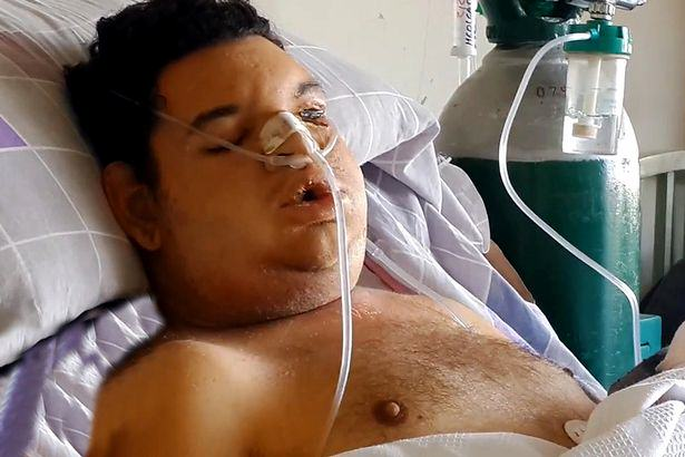 Student Fighting For Life After Being Bitten By Worlds Deadliest Spider UNILAD cen15
